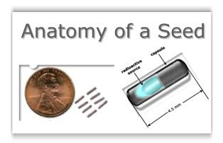 Brachytherapy: Prostate Seed Implant